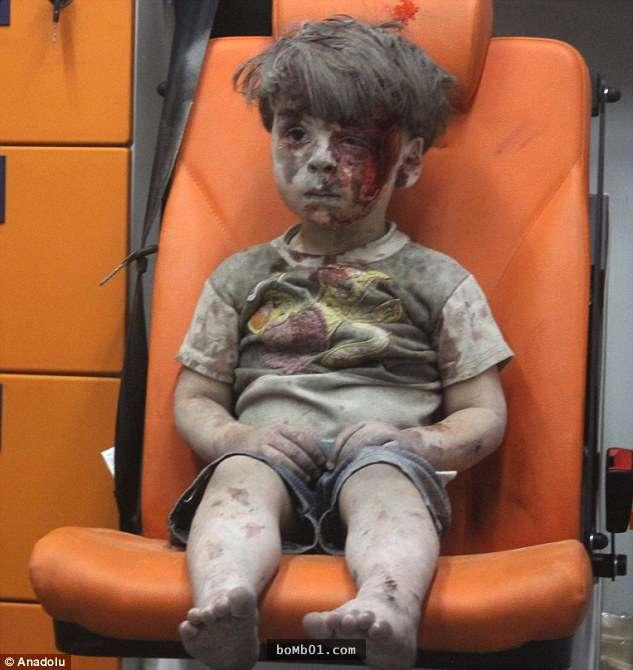 cau be syria 1