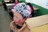 cậu bé tóc đóng băng