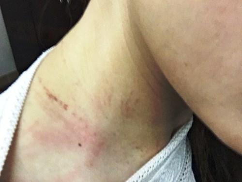 Nữ nhân viên hàng không sợ bị trả thù vì người hành hung
