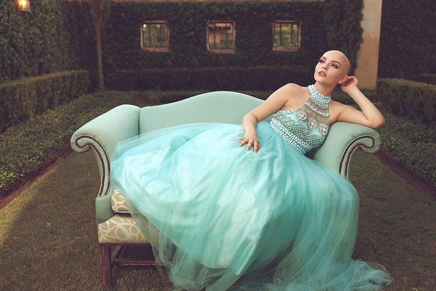 bald-teen-cancer-photoshoot-andrea-sierra-salazar-gerardo-garmendia-35 bệnh ung thư