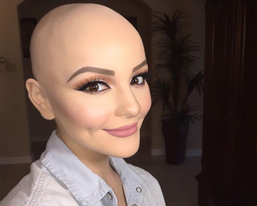 bald-teen-cancer-photoshoot-andrea-sierra-salazar-gerardo-garmendia-40