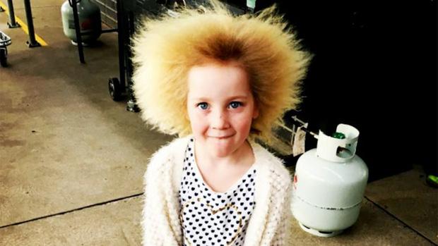 Cô bé 7 tuổi mắc hội chứng tóc bất trị giống nhà bác học Einstein - Ảnh 1.