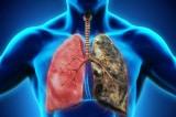 Vì sao nhiều người không hút thuốc mà vẫn bị ung thư phổi?