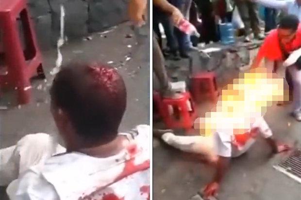 Một người bị nghi là trộm bị đánh và đốt xăng tại thủ đô Caracas