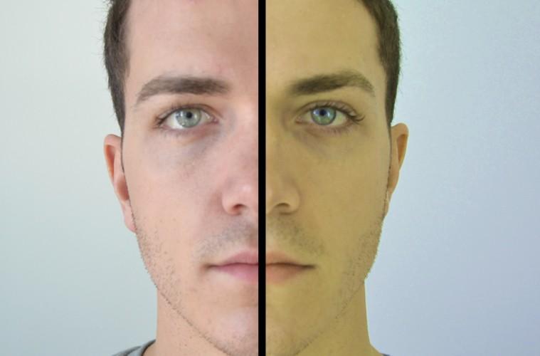 Vàng da là triệu chứng bệnh gan thời kỳ đầu. (ảnh qua collective-evolution.com)
