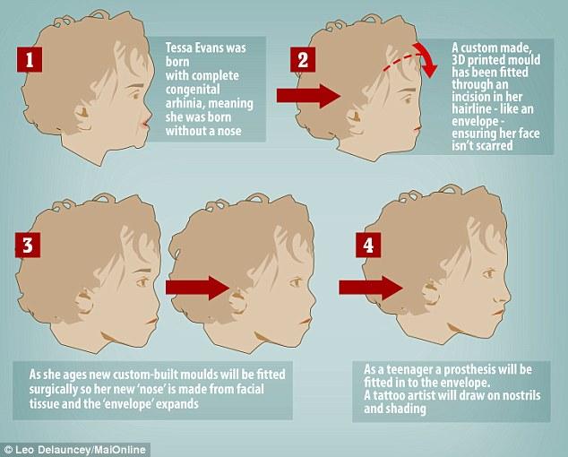 Quy trình cấy ghép mũi giả cho bé Tessa. Ảnh: DailyMail