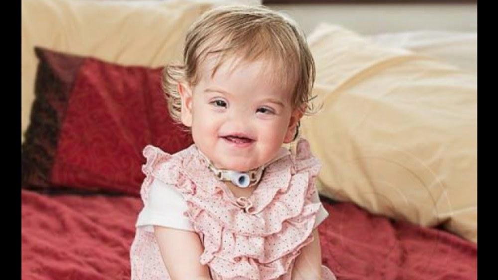 Bé Tessa Evans sinh ra đã không có mũi. (Ảnh: Viral Cocktail)