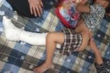 Học sinh gãy chân tại Trường tiểu học Nam Trung Yên bị thương tật 32%