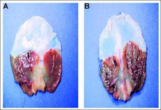 Ảnh chụp thể tùng bị vôi hóa (ảnh: phytoactive.net)