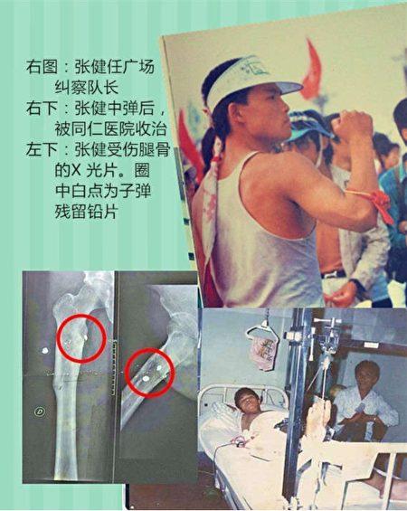 Ảnh bên phải: Trương Kiện ở quảng trường giống như một vị đội trưởng; Ảnh dưới bên phải: Trương Kiện trúng đạn nằm tại bệnh viện Đồng Nhân để điều trị; Ảnh dưới bên trái: Ảnh chụp X Quang Trương Kiện bị thương ở đùi (Ảnh do Trương Kiện cung cấp)