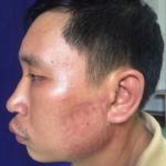 Một người trong nhóm bị công an đánh còn in cả dấu giày trên mặt. (Ảnh do đương sự cung cấp)
