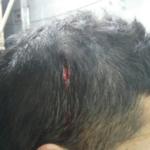 Một người khác bị công an đánh chảy máu đầu (Ảnh do đương sự cung cấp)