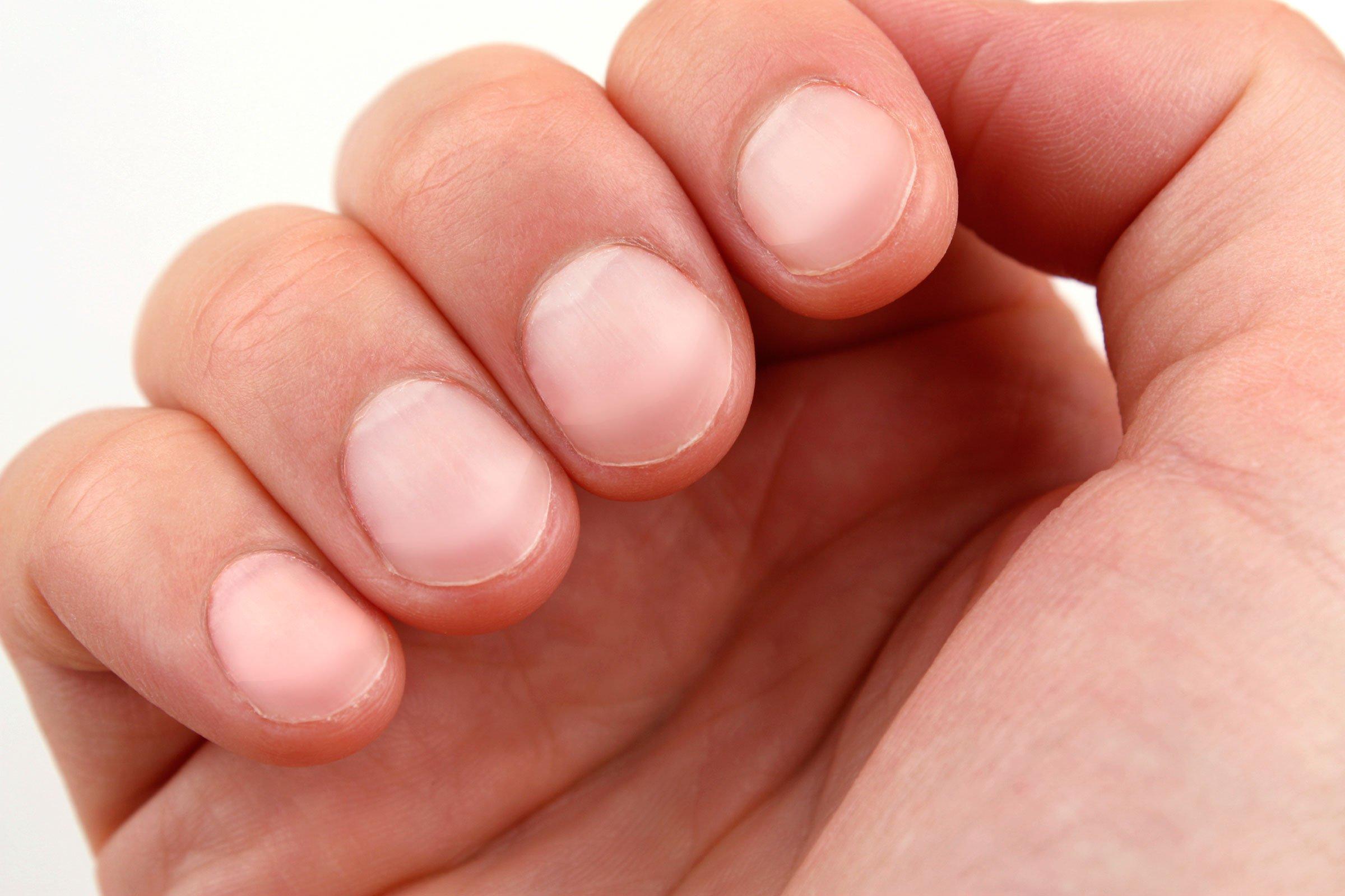6 căn bệnh bàn tay của bạn có thể dự báo