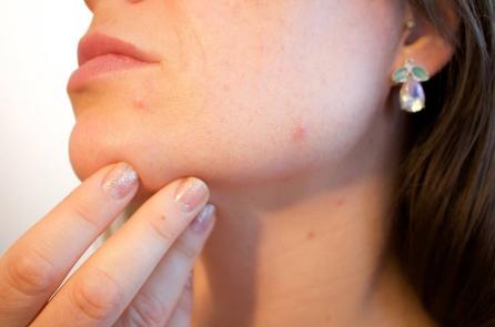 Làm thế nào phòng tránh các bệnh về da vào mùa đông?