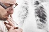 Sau cai thuốc lá, phần phổi thương tổn có thể phục hồi?