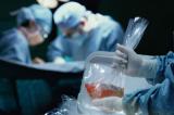 Báo cáo bị rò rỉ củng cố bằng chứng về tội ác thu hoạch tạng tại TQ