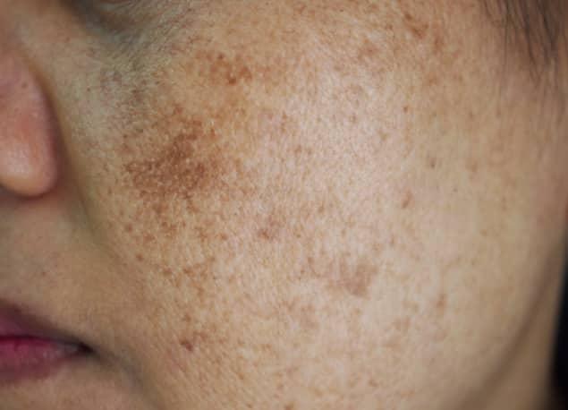 3 dấu hiệu xuất hiện trên mặt cảnh báo gan bạn thải độc không tốt