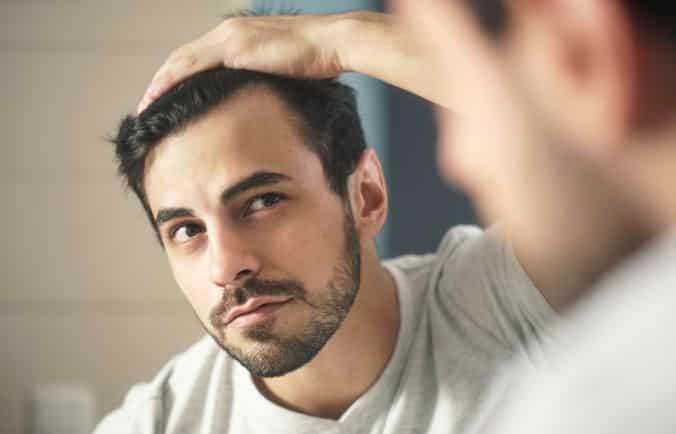 rụng tóc, điều trị rụng tóc