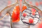SARS, Viêm phổi