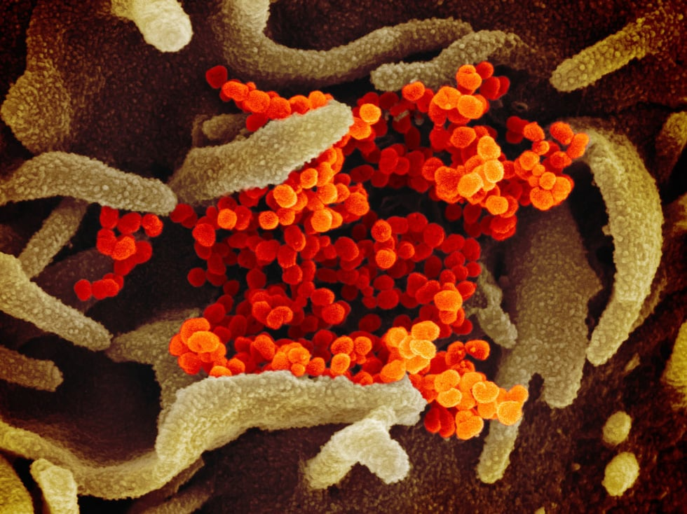 virus-corona-mau-cam-1581730527325710153107