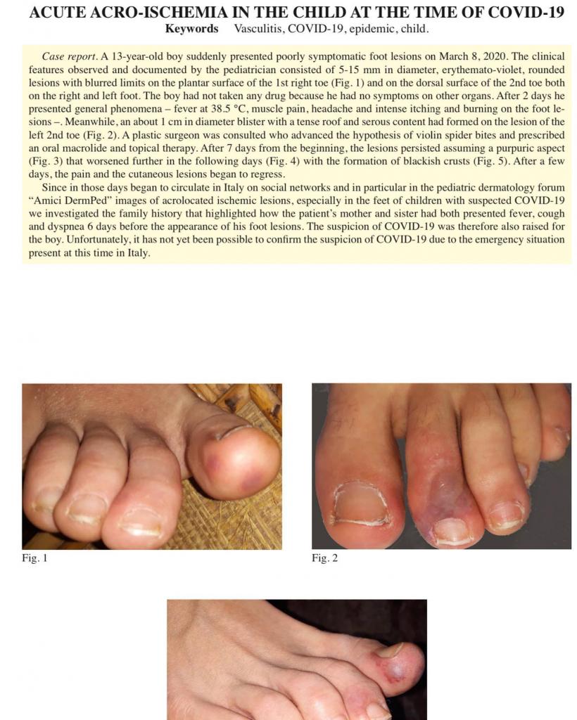 Người nhiễm virus Viêm phổi Vũ Hán có triệu chứng giống mụn nước ở ngón chân