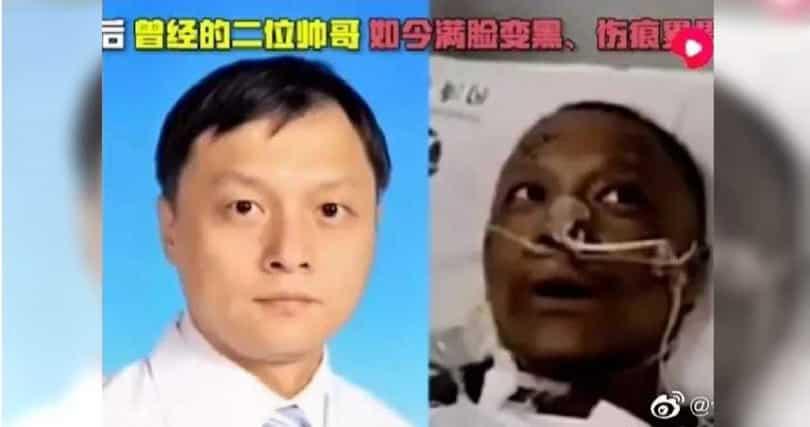 viêm phổi Vũ Hán, viêm phổi Trung Cộng, Da chuyển màu đen