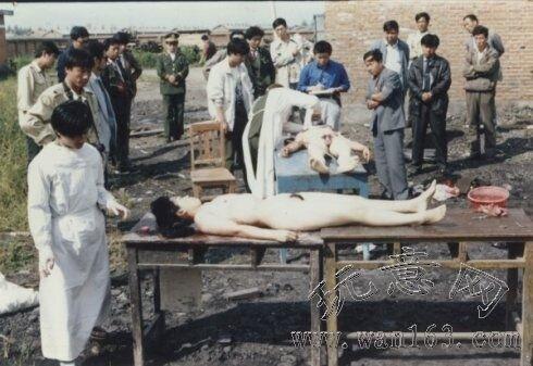 Tiết lộ loạt ảnh thu hoạch tạng tại TQ từ những năm 80