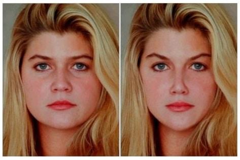 Tỷ lệ vàng hiện hữu trên khuôn mặt con người như thế nào?
