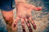 Đàn ông trong một gia tộc ở Bangladesh đều không có dấu vân tay