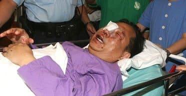 Ông Hà Tuấn Nhân, một người ủng hộ Cao tại Hồng Kông bị du côn đánh trọng thương ngay sau khi Cao bị bắt (Ảnh: Internet)