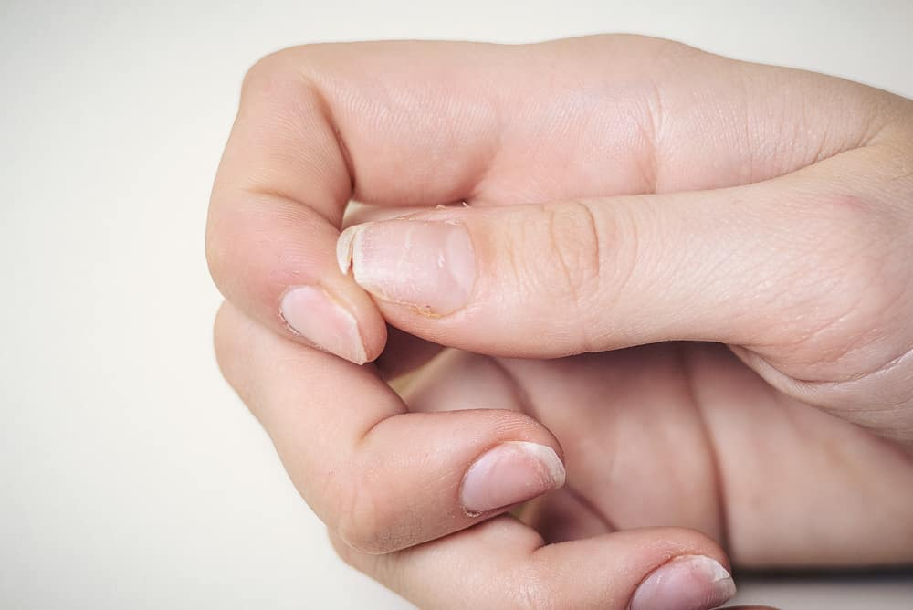 móng tay dễ gãy, móng tay