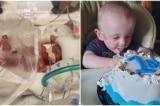 Bé trai sinh non 21 tuần với tỷ lệ sống sót 0% đón sinh nhật 1 tuổi