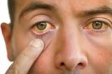 8 dấu hiệu cho thấy bạn có thể đang mắc bệnh gan