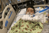 bé trai phẫu thuật