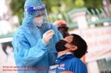 Sau tin doanh nhân nói chỉ 1,5 USD/test tại nước ngoài, Bộ Y tế báo từ ngày 25/9 giá đã giảm